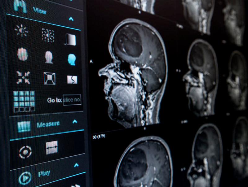 澳洲医学影像专业就读优势