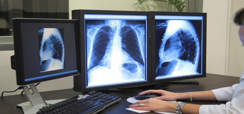 澳洲医学影像专业哪个大学好